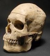Crâne d'Ataï – France et Nouvelle-Calédonie